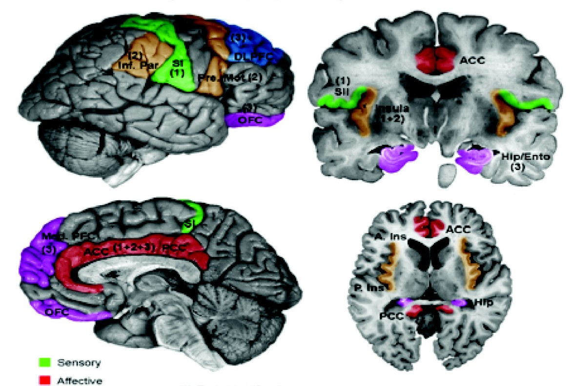 Schematic of fMRI of brain, a diagnostic tool used to analyze mutitasking